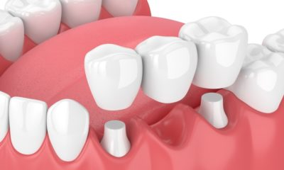 Dental Bridges 101: Understanding the What and How